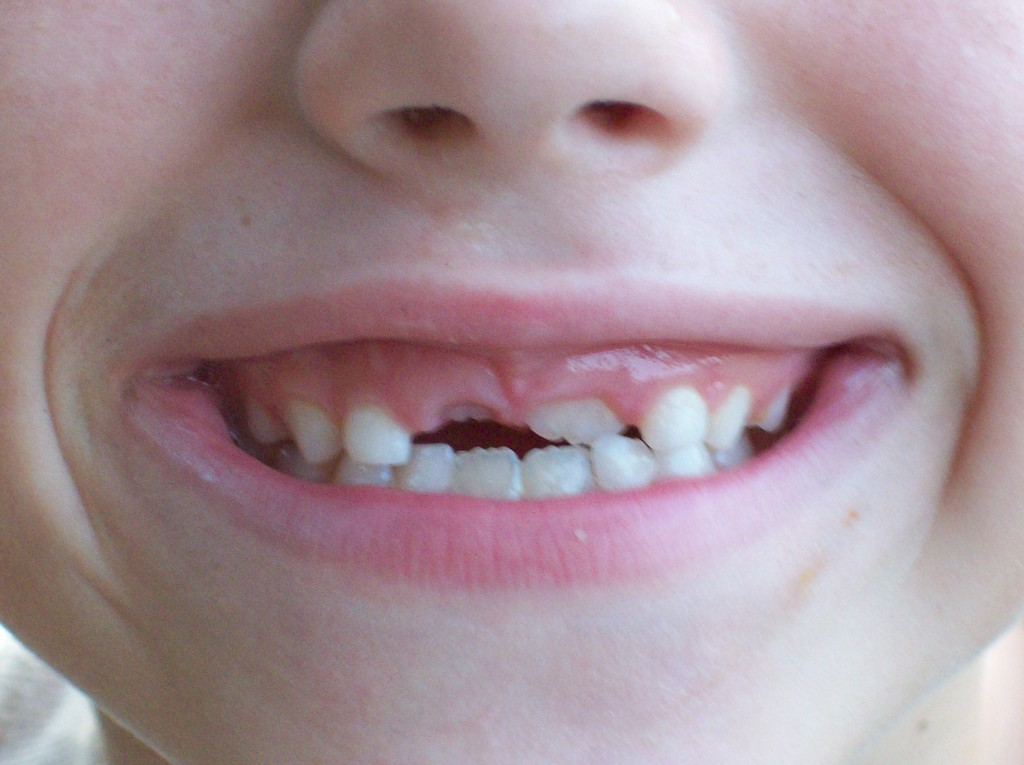 Some simple tips for healthy, growing teeth