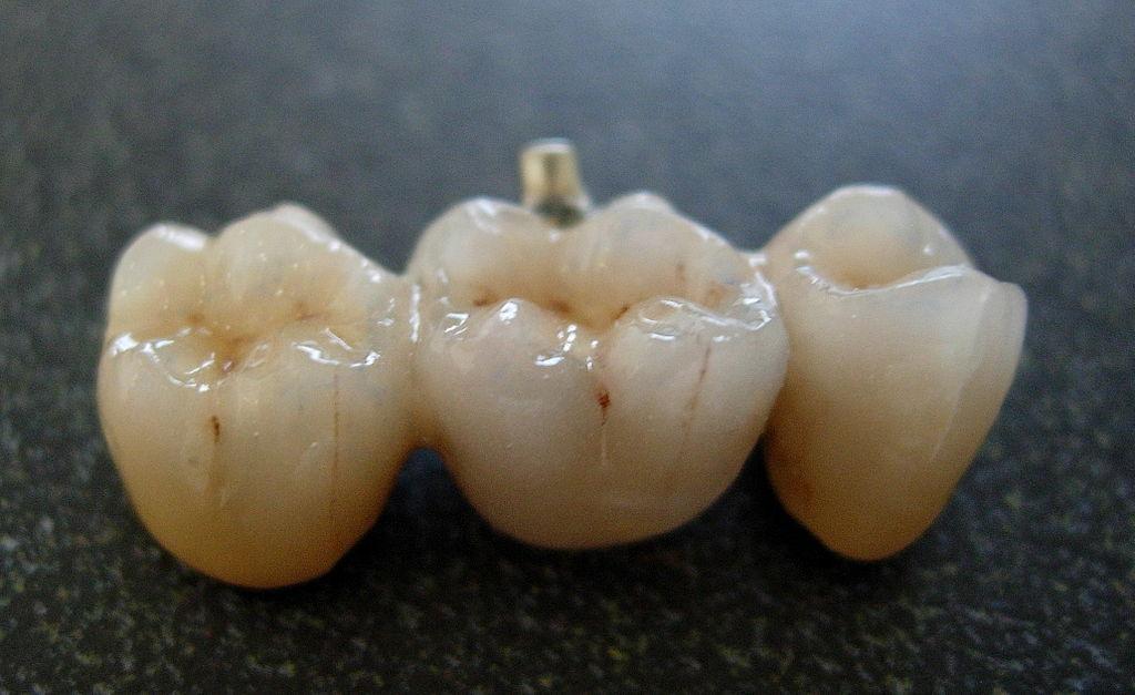 garden grove dental. \ Garden Grove Dental