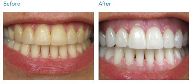 Two Pathways To Whiter Teeth Whitening Vs Veneers